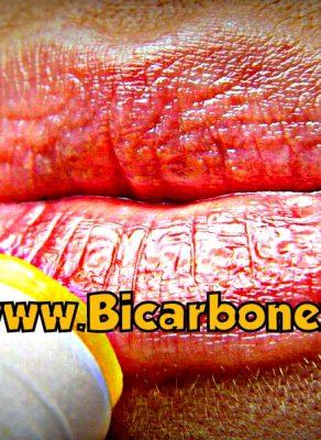 bicarbonato de sodio para el herpes