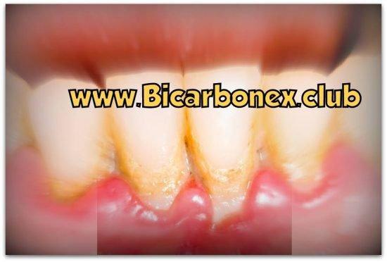 placa dental bicarbonato de sodio